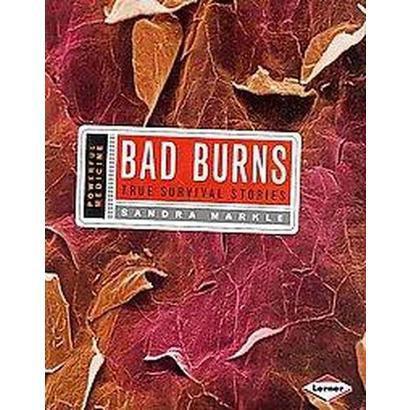 Bad Burns (Hardcover)