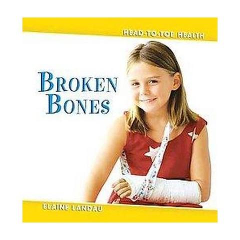 Broken Bones (Hardcover)