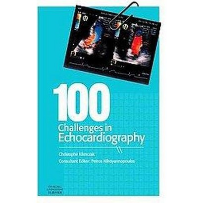 100 Challenges in Echocardiography (Paperback)