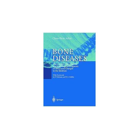 Bone Diseases (Paperback)