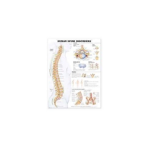 Human Spine Disorders Anatomical Chart (Wallchart)