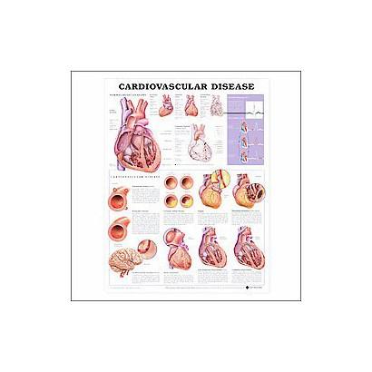 Cardiovascular Disease Chart (Wallchart)
